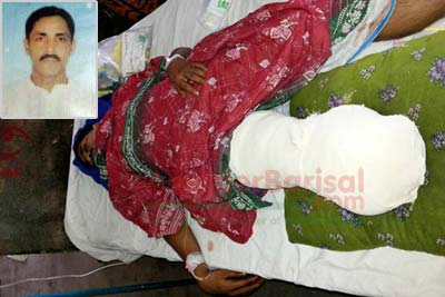 Leg of AL leader amputated in Patuakhali