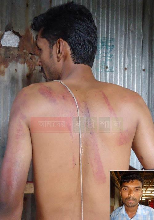 patuakhali-journalist-beatiten-torture এবার সাংবাদিক পেটালেন সেই উপজেলা চেয়ারম্যান