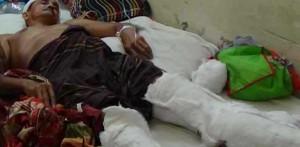 পিরোজপুরে দূর্বৃত্তদের হামলামলায় শিক্ষক আহত
