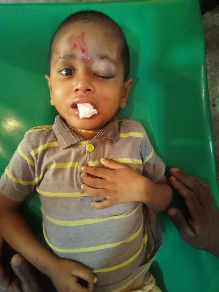 আগৈলঝাড়ায়পাঠশালায় গাছ চাপা পরে শিশু শিক্ষার্থীসহ ৮জন আহত