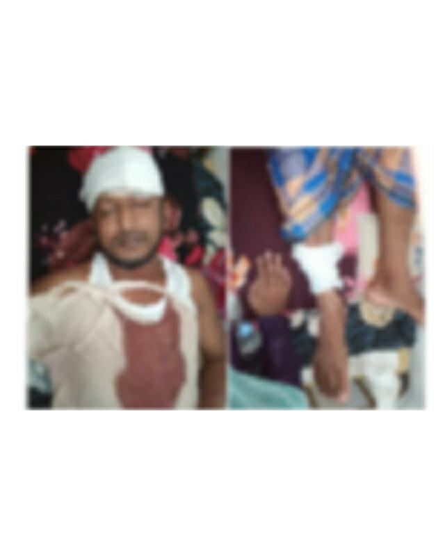 লালমোহনে সন্ত্রাসী হামলায় আহত ব্যক্তি নিতে পারেনি চিকিৎসা সেবা